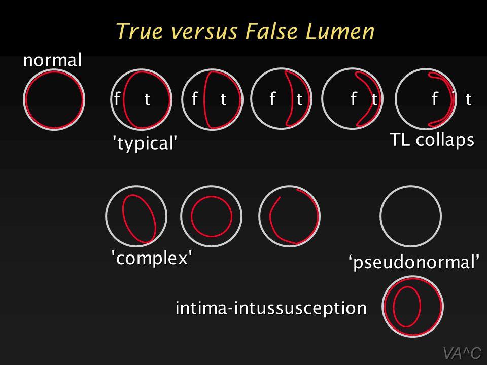 True versus False Lumen VA^C ttttt normal fffff intima-intussusception typical TL collaps complex 'pseudonormal'