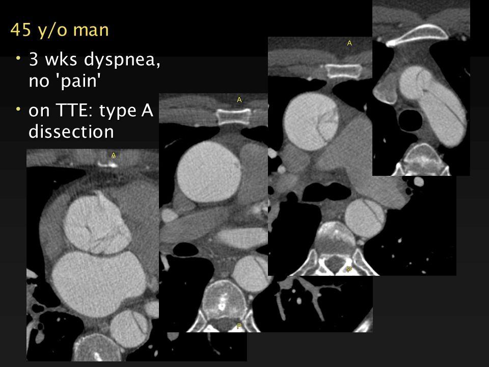 45 y/o man 3 wks dyspnea, no 'pain' 3 wks dyspnea, no 'pain' on TTE: type A dissection on TTE: type A dissection