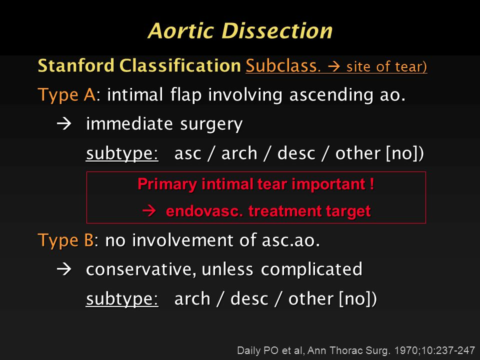 Aortic Dissection Stanford Classification Subclass.