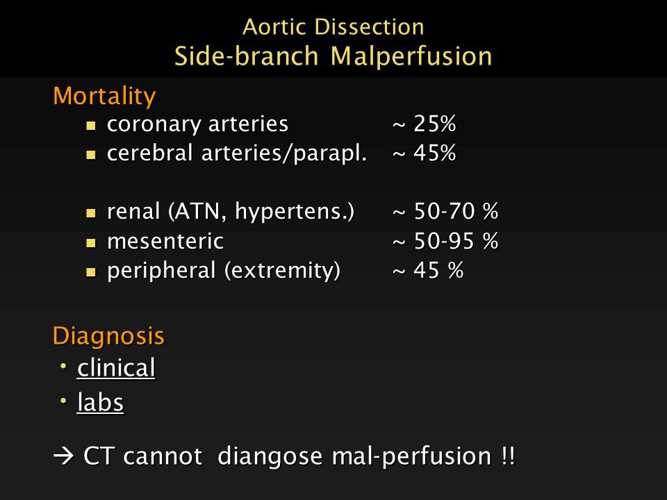 Aortic Dissection Side-branch Malperfusion Mortality n coronary arteries~ 25% n cerebral arteries/parapl.~ 45% n renal (ATN, hypertens.)~ 50-70 % n me