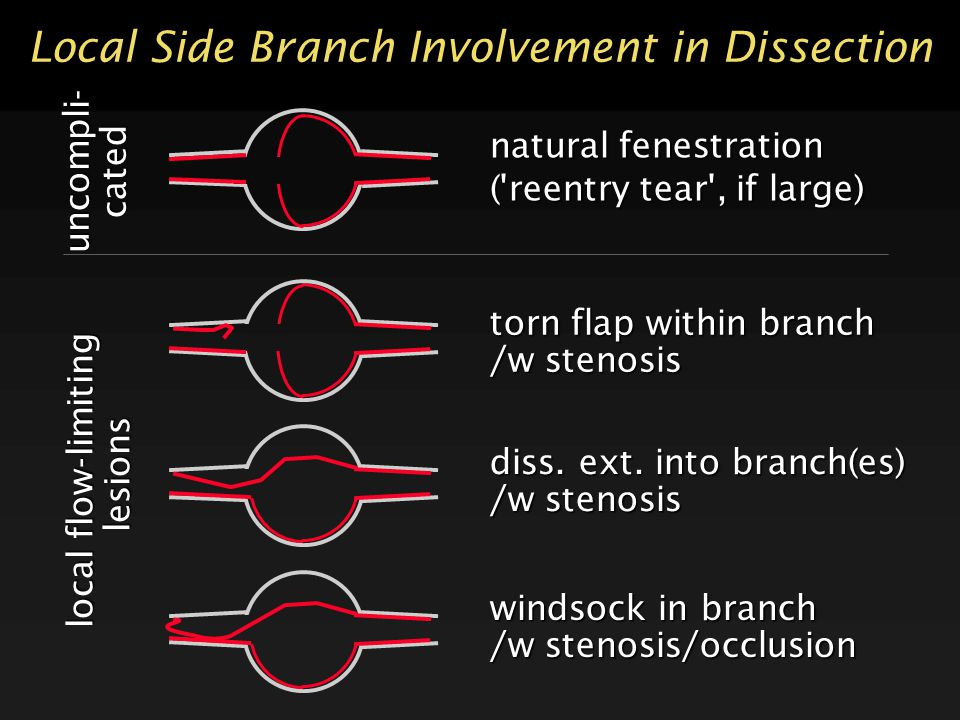 Local Side Branch Involvement in Dissection natural fenestration ('reentry tear', if large) local flow-limiting lesions lesions diss. ext. into branch