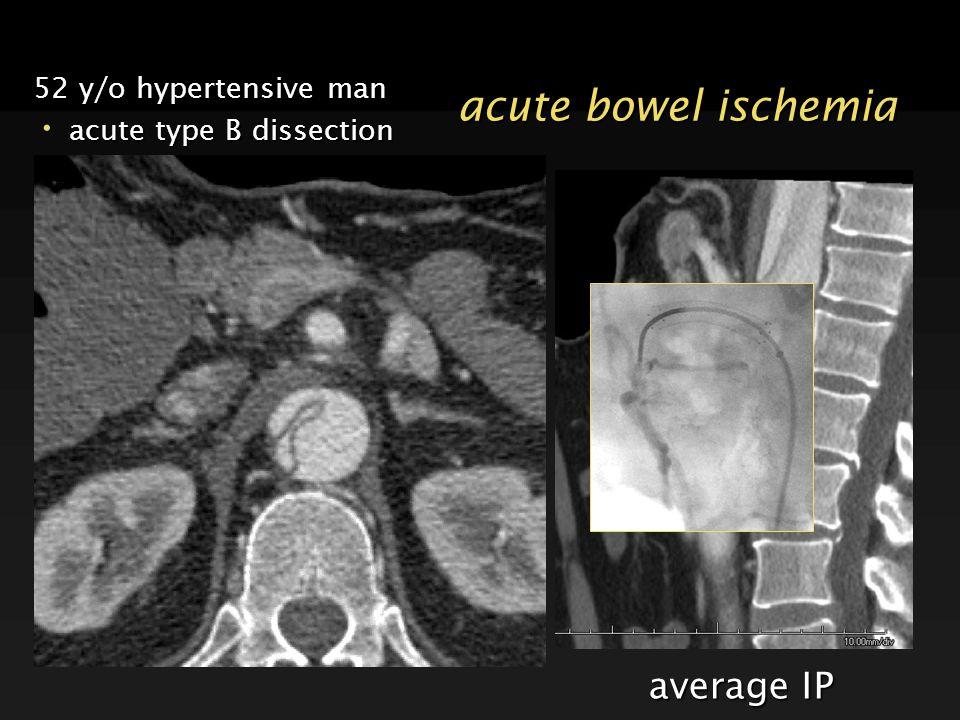 average IP acute bowel ischemia 52 y/o hypertensive man acute type B dissection acute type B dissection