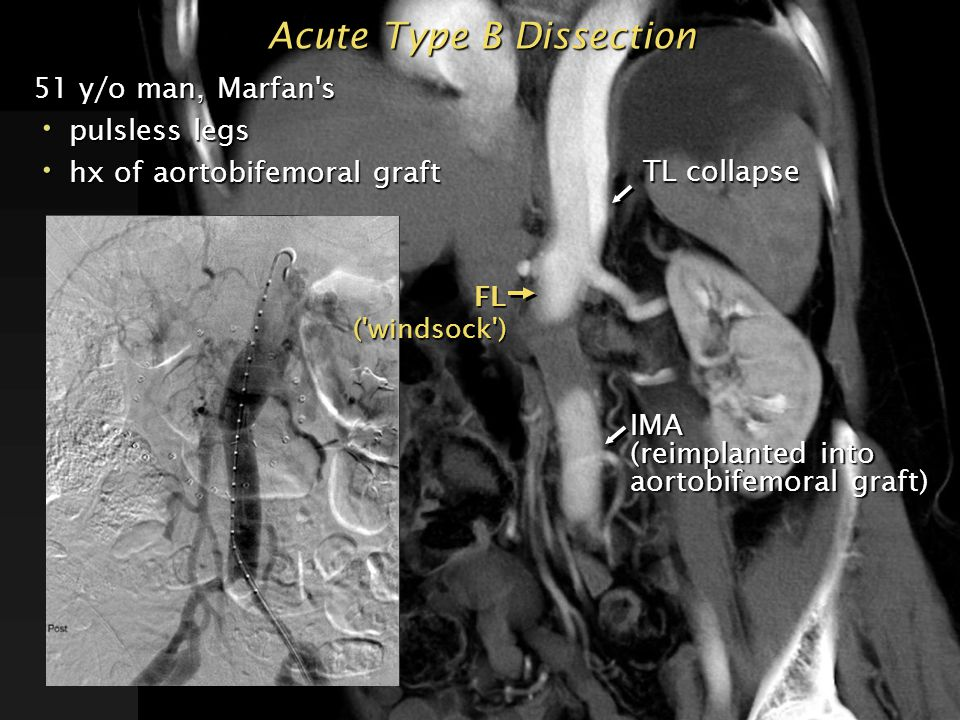51 y/o man, Marfan's pulsless legs pulsless legs hx of aortobifemoral graft hx of aortobifemoral graft Acute Type B Dissection False lumen injection T