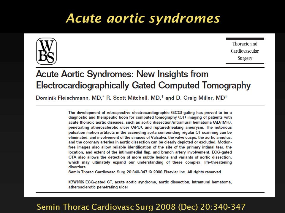 Acute aortic syndromes Aortic dissection  Classic aortic dissection  Intramural hematoma  Dissection variant 'limited tear with aortic bulge' = 'li