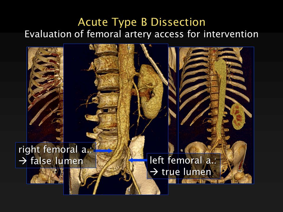 Acute Type B Dissection Evaluation of femoral artery access for intervention left femoral a.:  true lumen right femoral a.:  false lumen