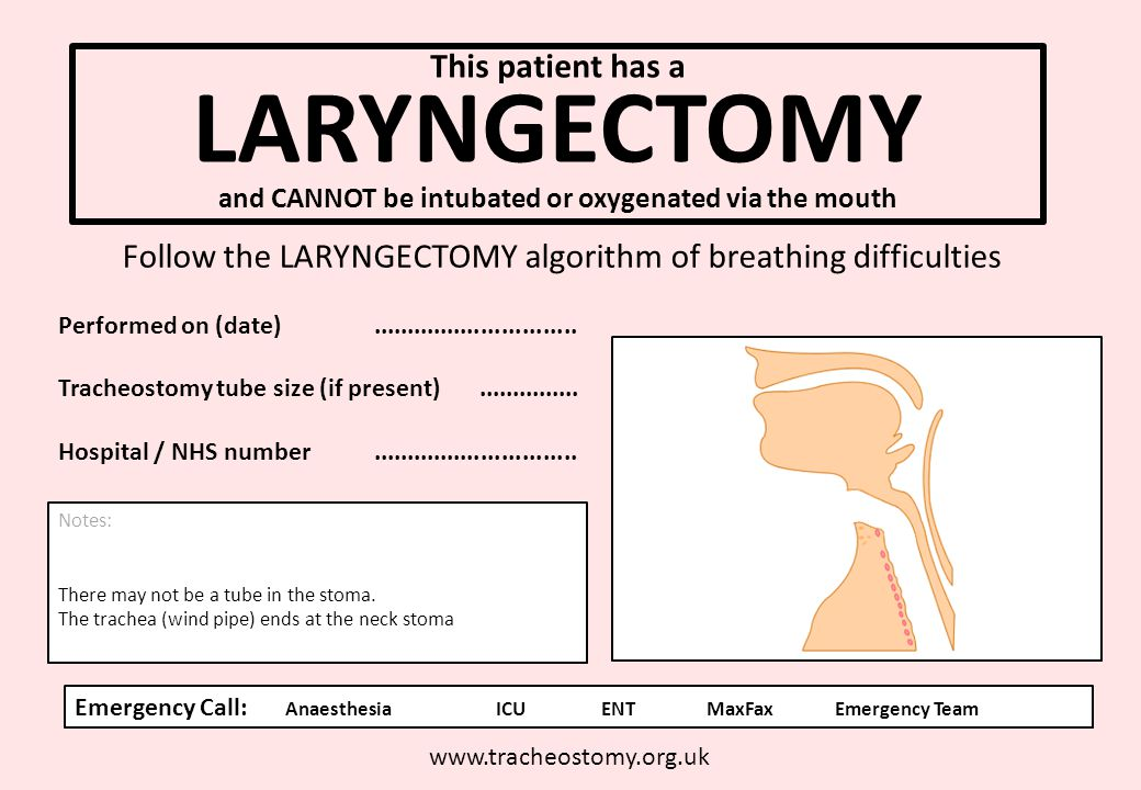 This patient has a LARYNGECTOMY and CANNOT be intubated or oxygenated via the mouth www.tracheostomy.org.uk Follow the LARYNGECTOMY algorithm of breat