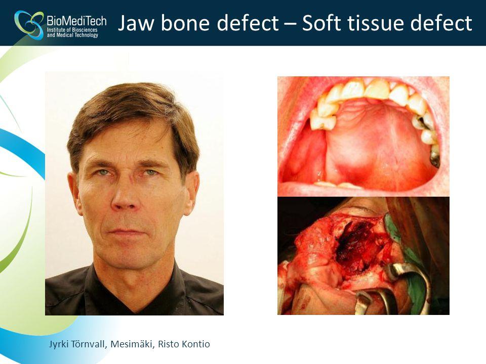 Jyrki Törnvall, Mesimäki, Risto Kontio Jaw bone defect – Soft tissue defect