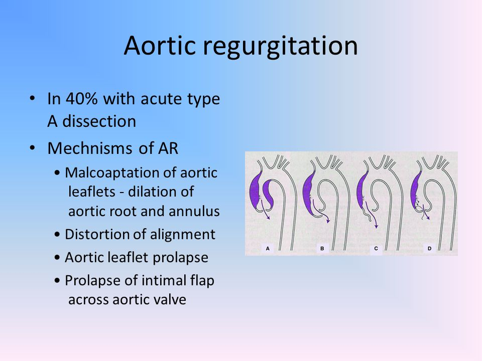Aortic regurgitation In 40% with acute type A dissection Mechnisms of AR Malcoaptation of aortic leaflets - dilation of aortic root and annulus Distor