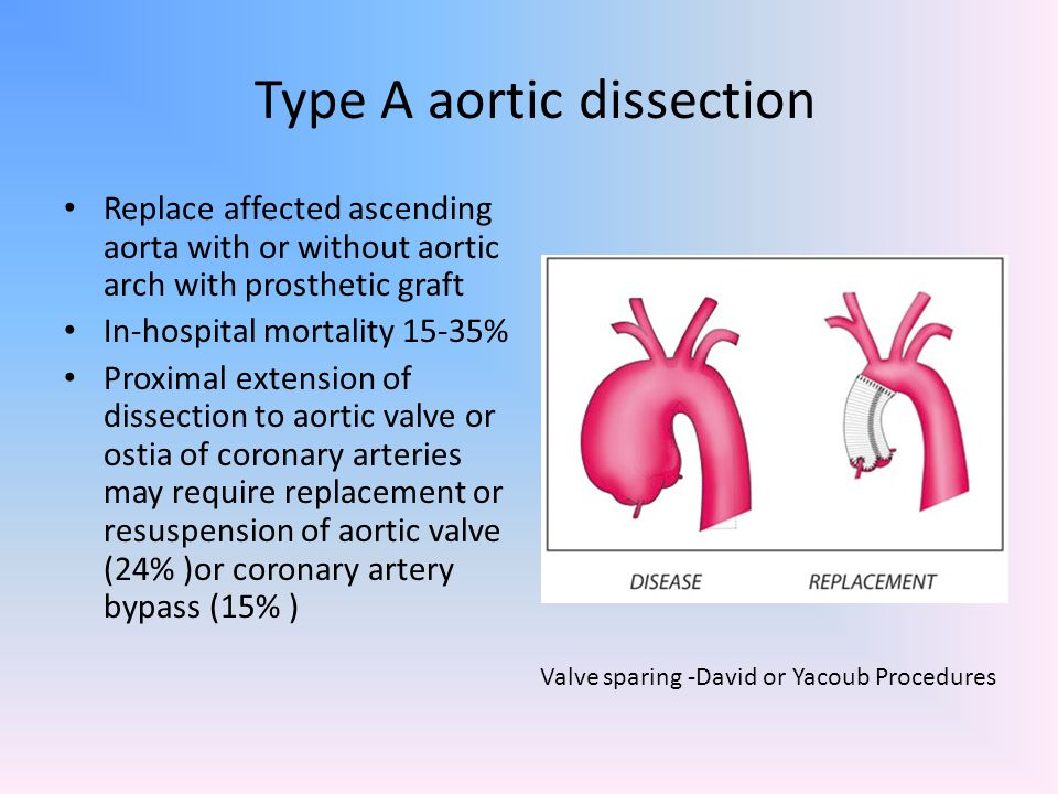 Type A aortic dissection Replace affected ascending aorta with or without aortic arch with prosthetic graft In-hospital mortality 15-35% Proximal exte