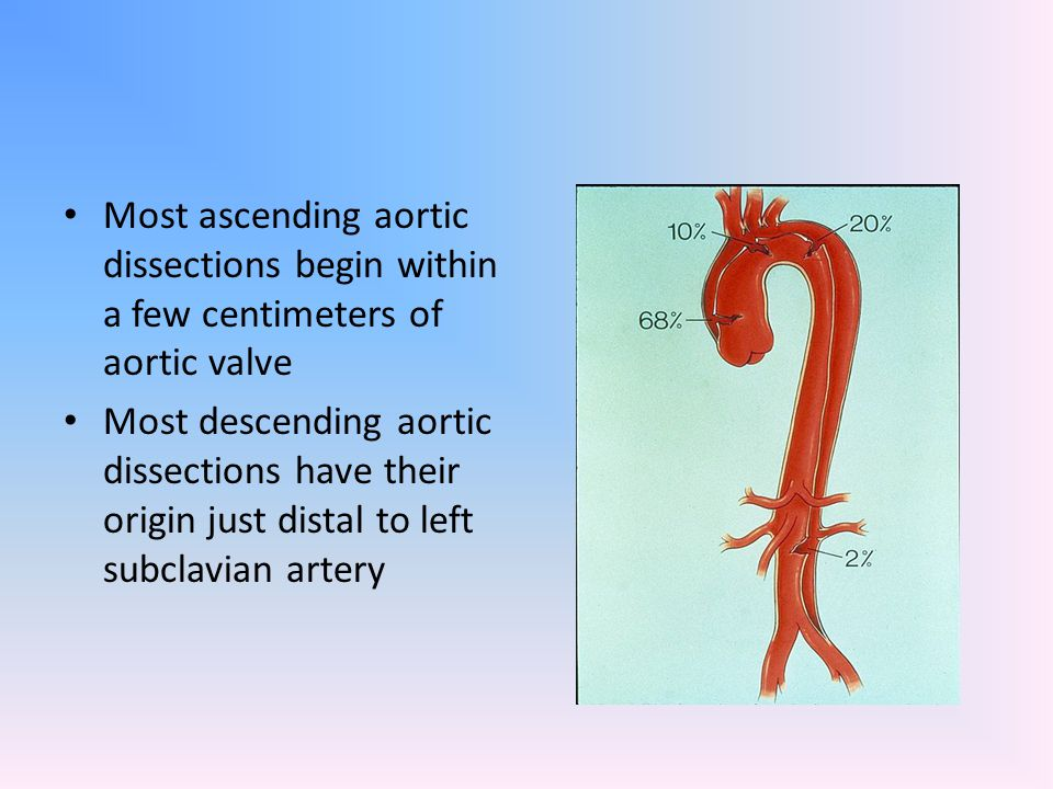 Most ascending aortic dissections begin within a few centimeters of aortic valve Most descending aortic dissections have their origin just distal to l
