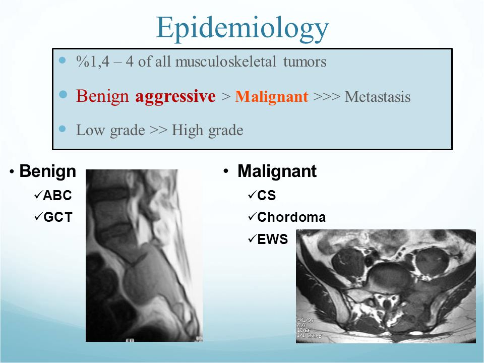 Epidemiology %1,4 – 4 of all musculoskeletal tumors Benign aggressive > Malignant >>> Metastasis Low grade >> High grade Benign ABC GCT Malignant CS Chordoma EWS