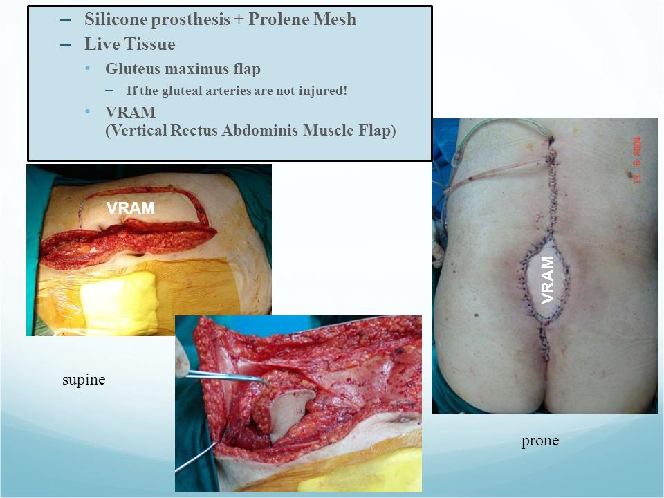 – Silicone prosthesis + Prolene Mesh – Live Tissue Gluteus maximus flap – If the gluteal arteries are not injured.