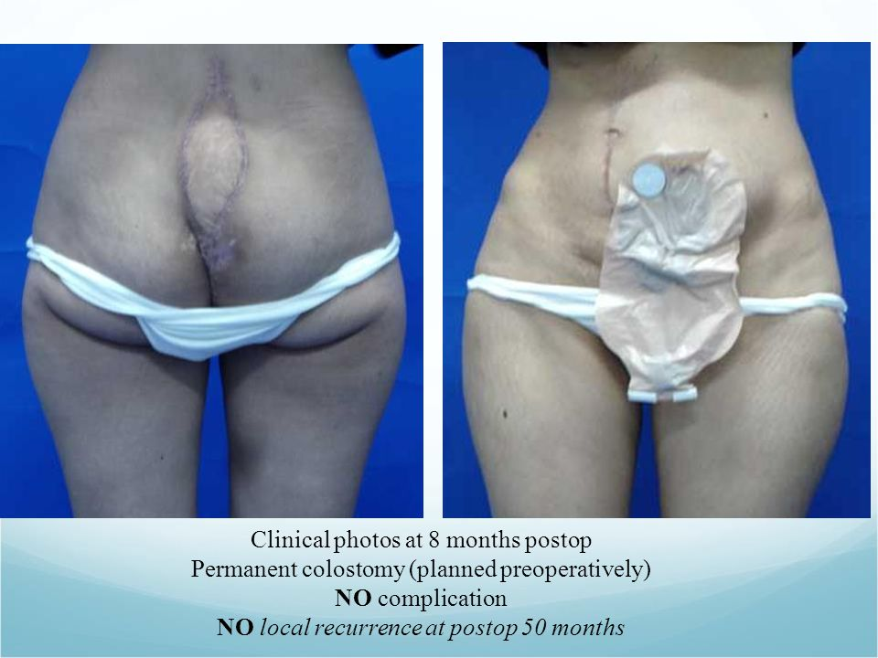 Clinical photos at 8 months postop Permanent colostomy (planned preoperatively) NO complication NO local recurrence at postop 50 months