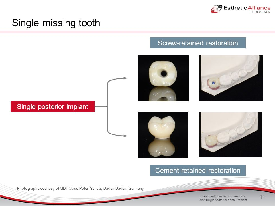Treatment planning and restoring the single posterior dental implant 11 Single missing tooth Screw-retained restoration Cement-retained restoration Si