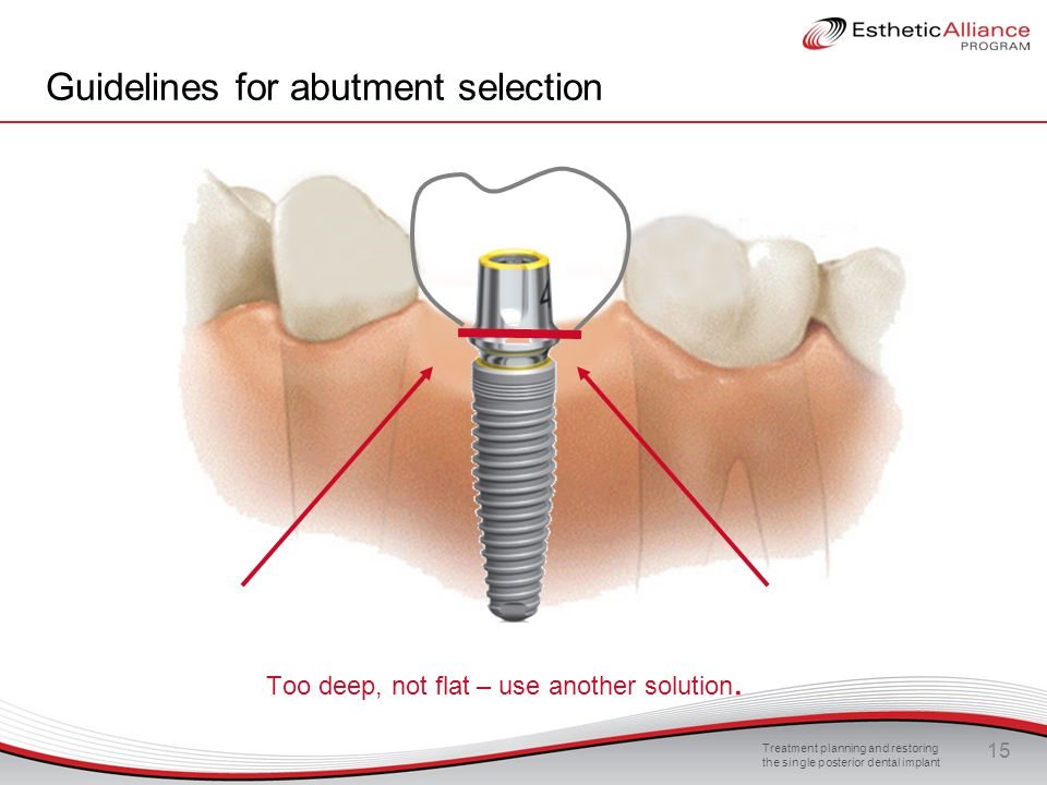 Treatment planning and restoring the single posterior dental implant 15 Guidelines for abutment selection Too deep, not flat – use another solution.