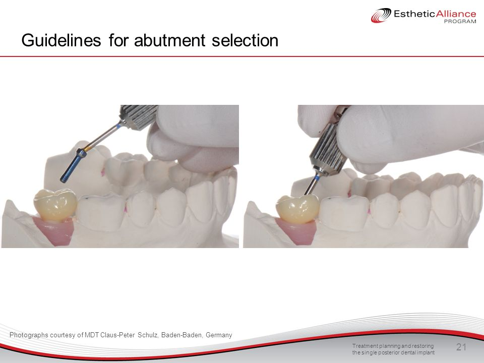 Treatment planning and restoring the single posterior dental implant 21 Guidelines for abutment selection Photographs courtesy of MDT Claus-Peter Schu