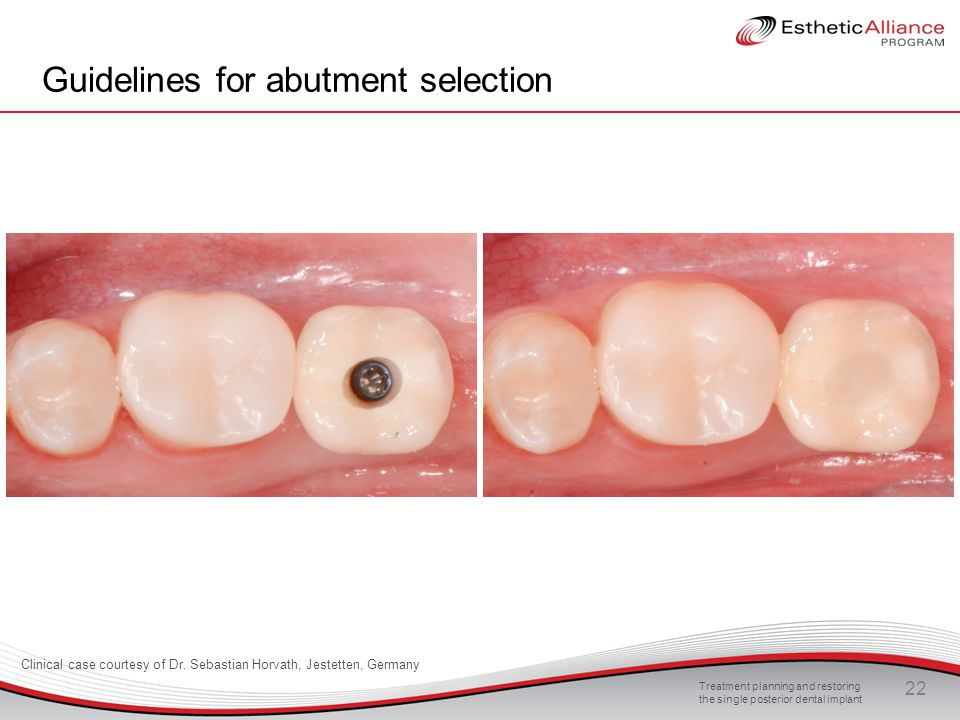 Treatment planning and restoring the single posterior dental implant 22 Guidelines for abutment selection Clinical case courtesy of Dr. Sebastian Horv
