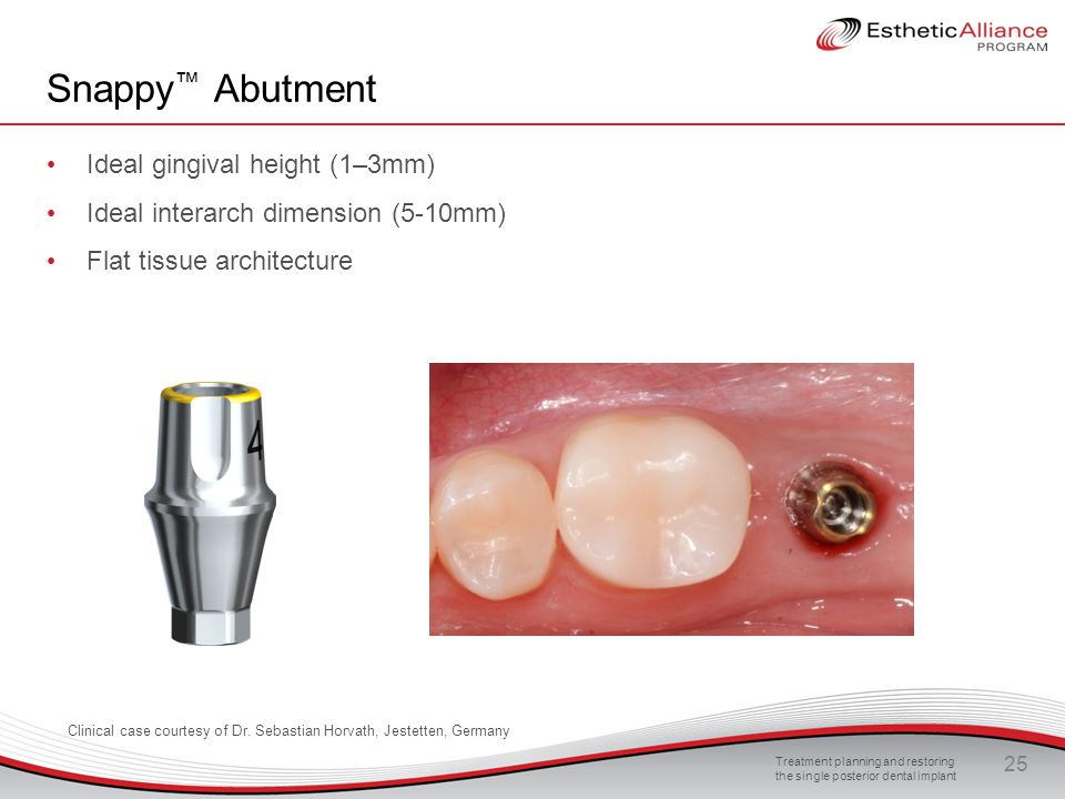 Treatment planning and restoring the single posterior dental implant 25 Snappy ™ Abutment Ideal gingival height (1–3mm) Ideal interarch dimension (5-1