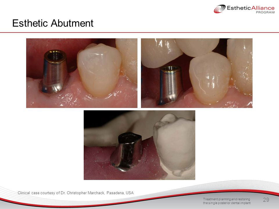Treatment planning and restoring the single posterior dental implant 29 Esthetic Abutment Clinical case courtesy of Dr. Christopher Marchack, Pasadena