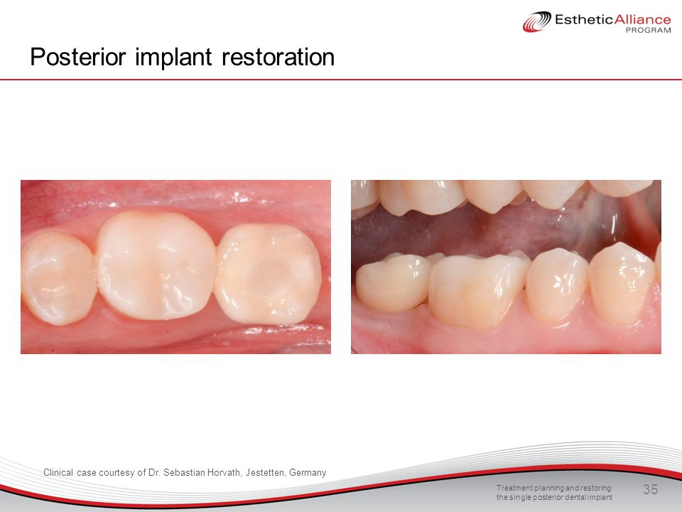 Treatment planning and restoring the single posterior dental implant 35 Posterior implant restoration Clinical case courtesy of Dr. Sebastian Horvath,