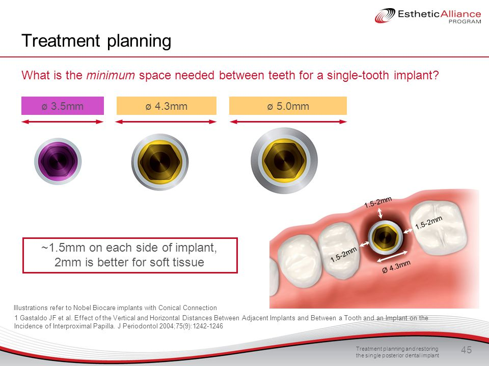 Treatment planning and restoring the single posterior dental implant 45 Treatment planning What is the minimum space needed between teeth for a single