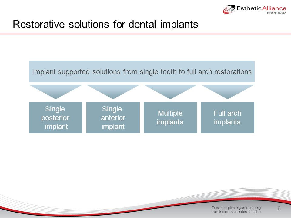 Treatment planning and restoring the single posterior dental implant 47 Occlusion and biomechanics Uneven loading Overloading may occur because of incorrect placement of the implant and critical restoration geometries This can result in uneven force distribution on the implant s surface Dental implants should ideally be placed so that the biting forces are directed straight downward onto the dental implant