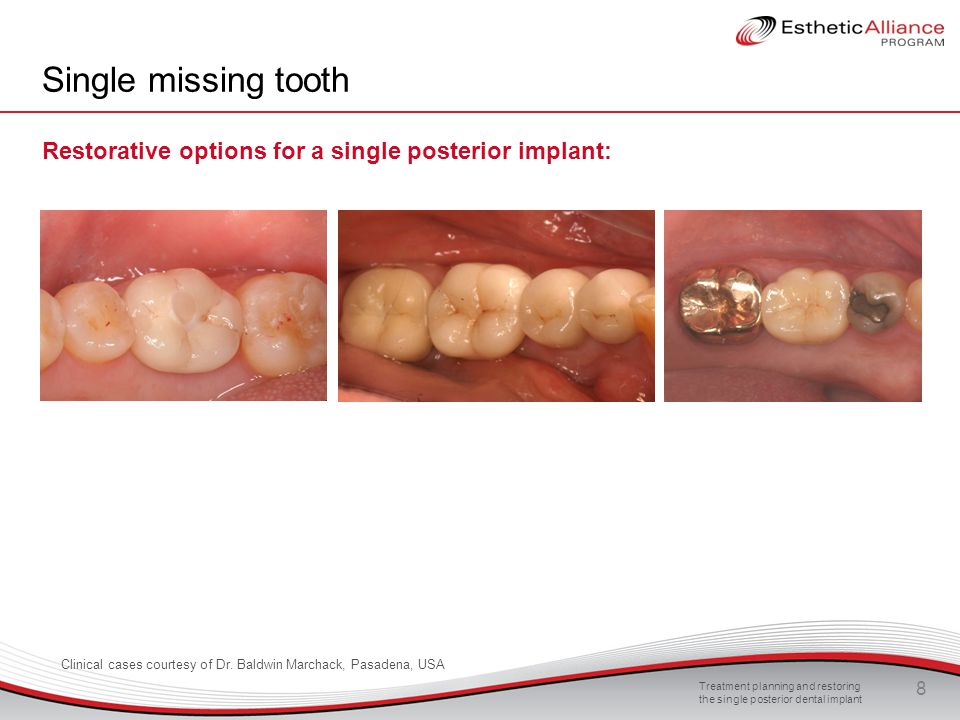 Treatment planning and restoring the single posterior dental implant 8 Single missing tooth Restorative options for a single posterior implant: Clinic