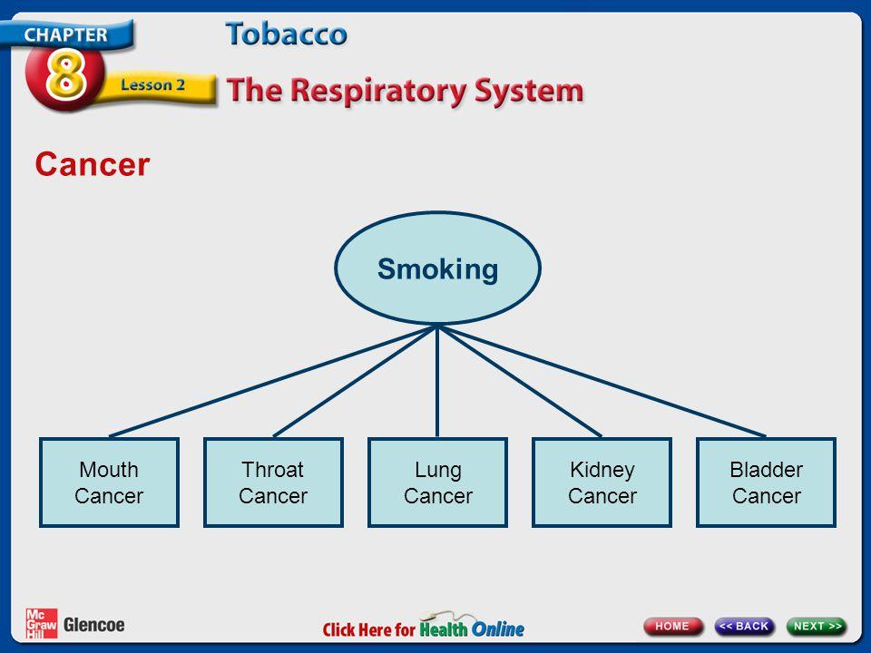 Cancer Smoking Mouth Cancer Throat Cancer Lung Cancer Kidney Cancer Bladder Cancer