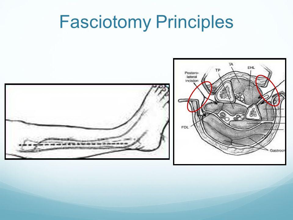 Fasciotomy Principles