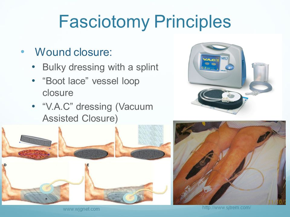 Fasciotomy Principles Wound closure: Bulky dressing with a splint Boot lace vessel loop closure V.A.C dressing (Vacuum Assisted Closure) http://www.sjtrem.com/ www.wjgnet.com
