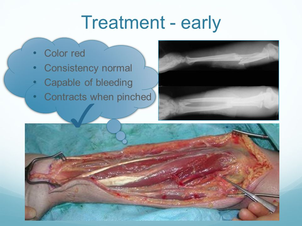 Treatment - early Color red Consistency normal Capable of bleeding Contracts when pinched ✓