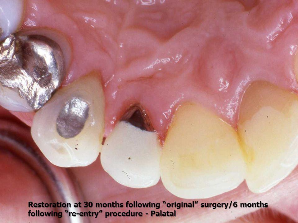 Restoration at 30 months following original surgery/6 months following re-entry procedure - Palatal