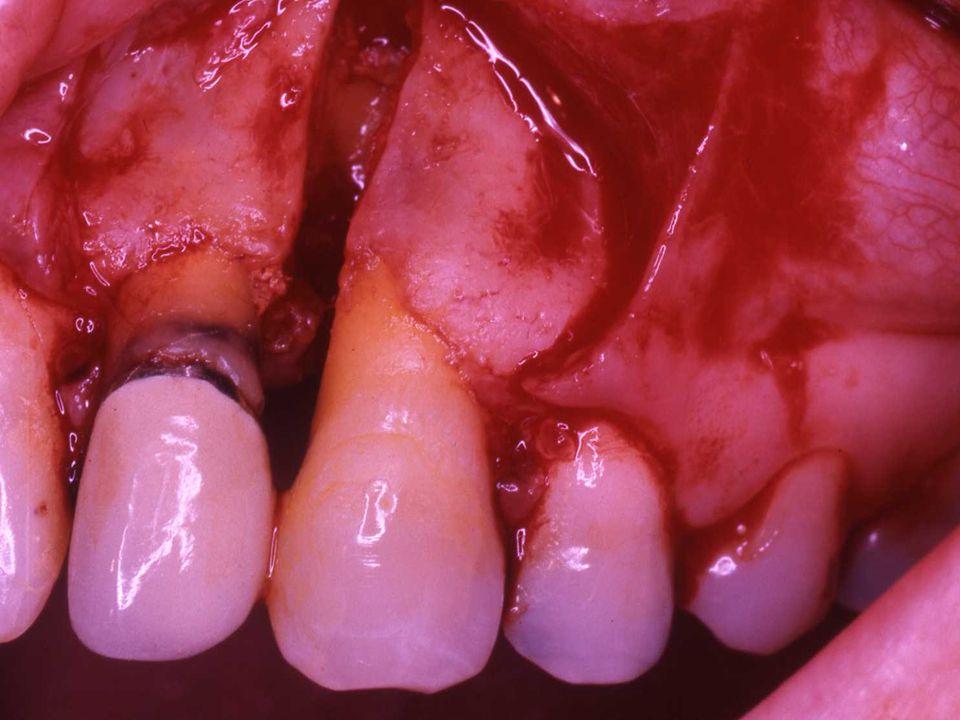 Restoration at 30 months following original surgery/6 months following re-entry procedure - Facial