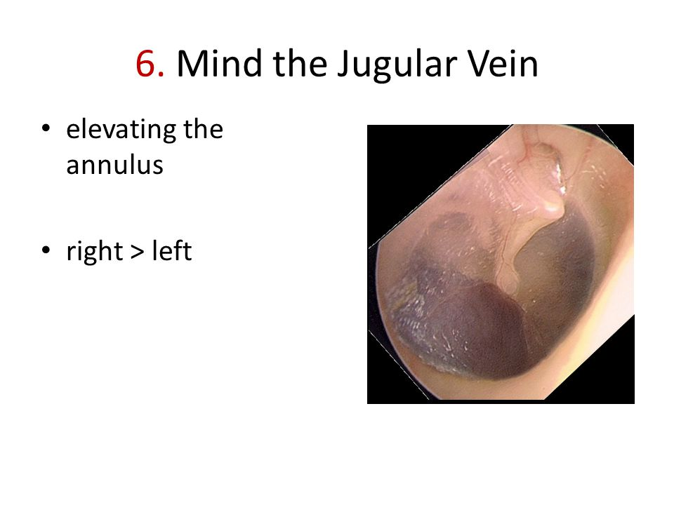 6. Mind the Jugular Vein elevating the annulus right > left