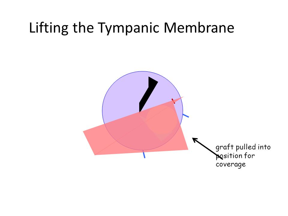 Lifting the Tympanic Membrane graft pulled into position for coverage