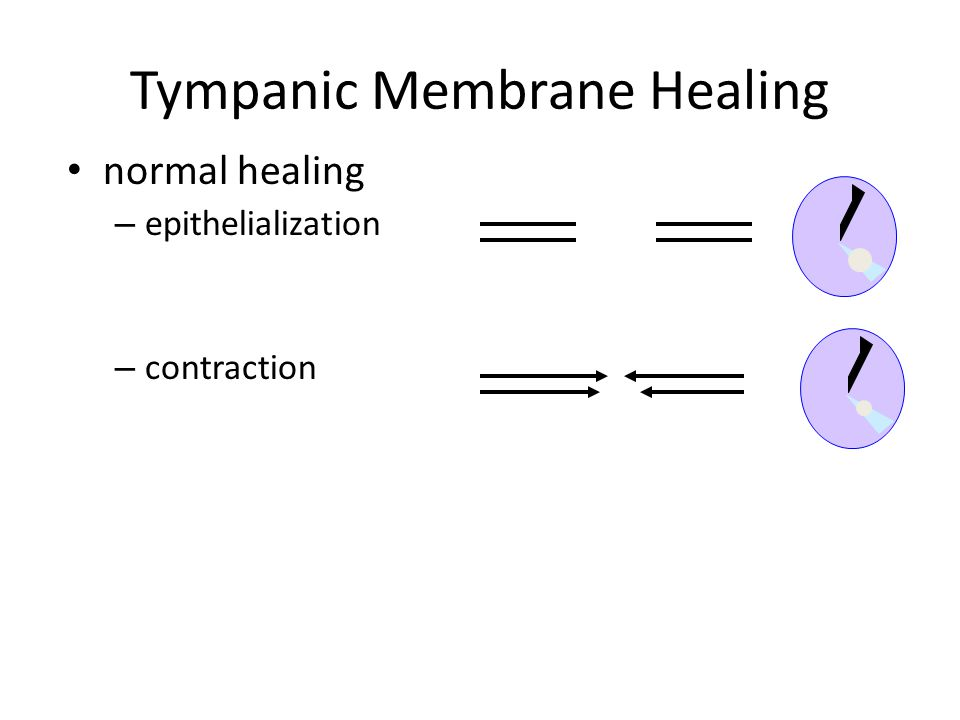 Tympanic Membrane Healing normal healing – epithelialization – contraction – growth inhibition