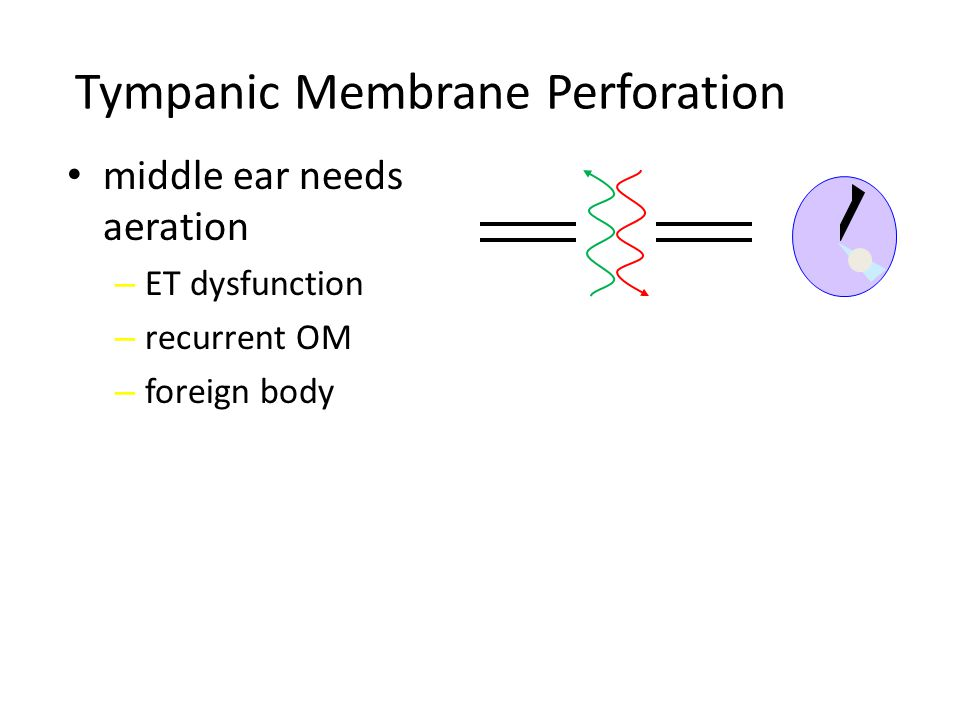 Tympanic Membrane Perforation middle ear needs aeration – ET dysfunction – recurrent OM – foreign body