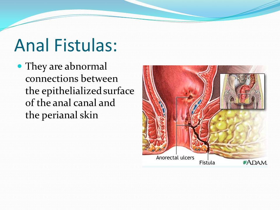 Anal Fistulas: They are abnormal connections between the epithelialized surface of the anal canal and the perianal skin