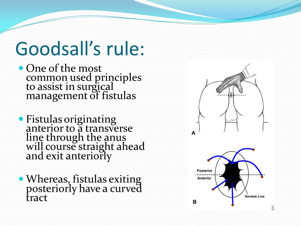 Goodsall's rule: One of the most common used principles to assist in surgical management of fistulas Fistulas originating anterior to a transverse lin