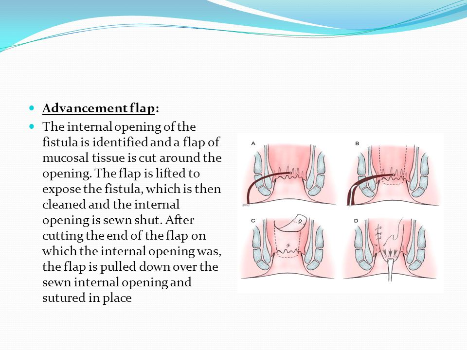 Advancement flap: The internal opening of the fistula is identified and a flap of mucosal tissue is cut around the opening. The flap is lifted to expo