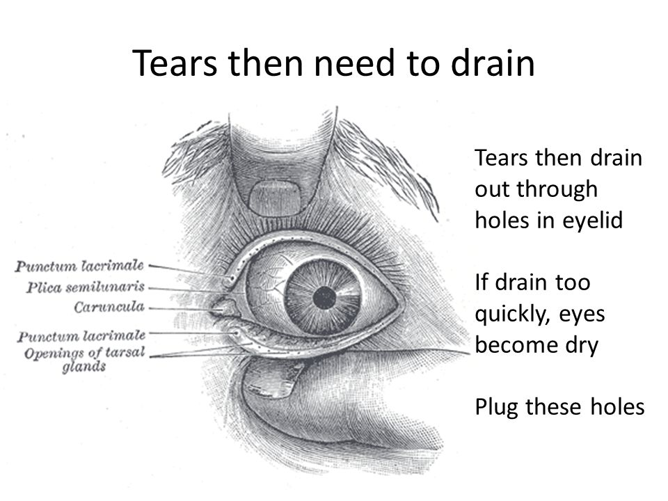 Tears then need to drain Tears then drain out through holes in eyelid If drain too quickly, eyes become dry Plug these holes
