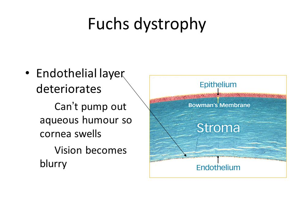 Fuchs dystrophy Endothelial layer deteriorates Can't pump out aqueous humour so cornea swells Vision becomes blurry