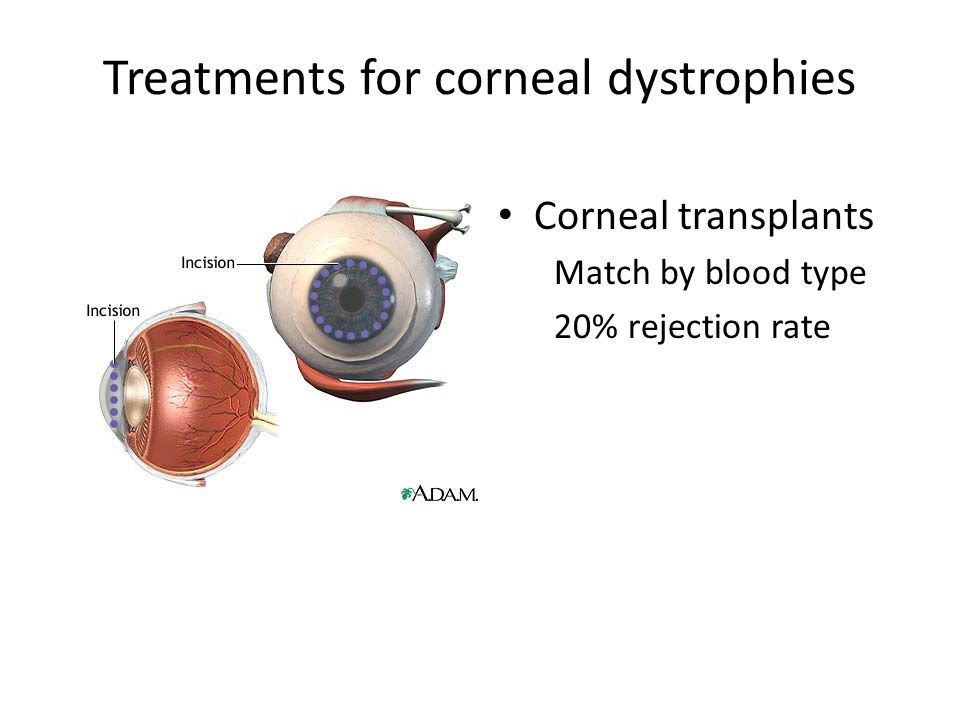 Treatments for corneal dystrophies Corneal transplants Match by blood type 20% rejection rate