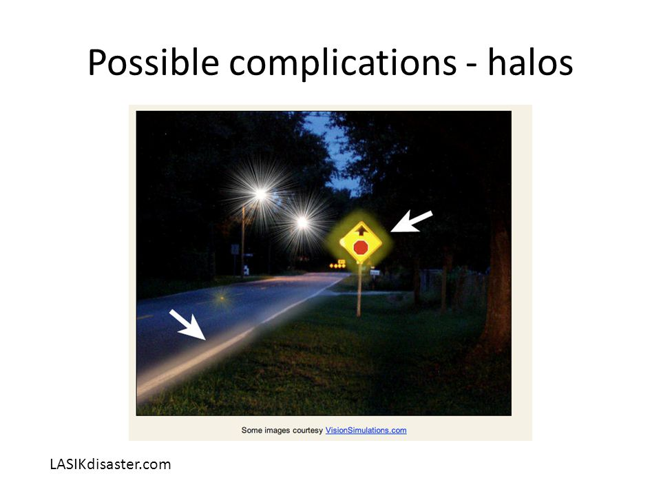 Possible complications - halos LASIKdisaster.com
