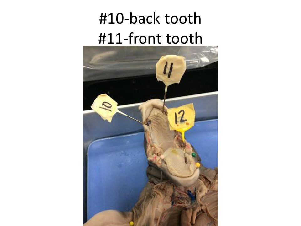 #10-back tooth #11-front tooth