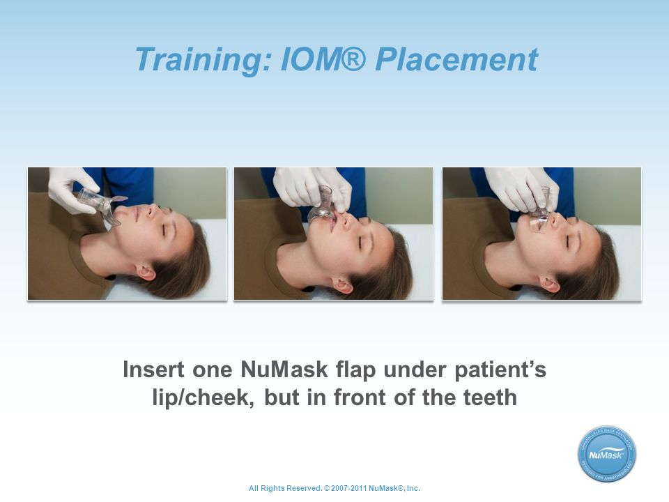 Training: IOM® Placement Insert one NuMask flap under patient's lip/cheek, but in front of the teeth All Rights Reserved.