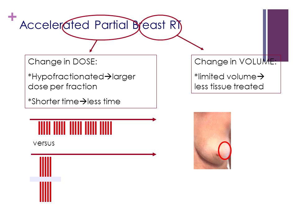 + Accelerated Partial Breast RT Change in DOSE: *Hypofractionated  larger dose per fraction *Shorter time  less time versus Change in VOLUME: *limited volume  less tissue treated
