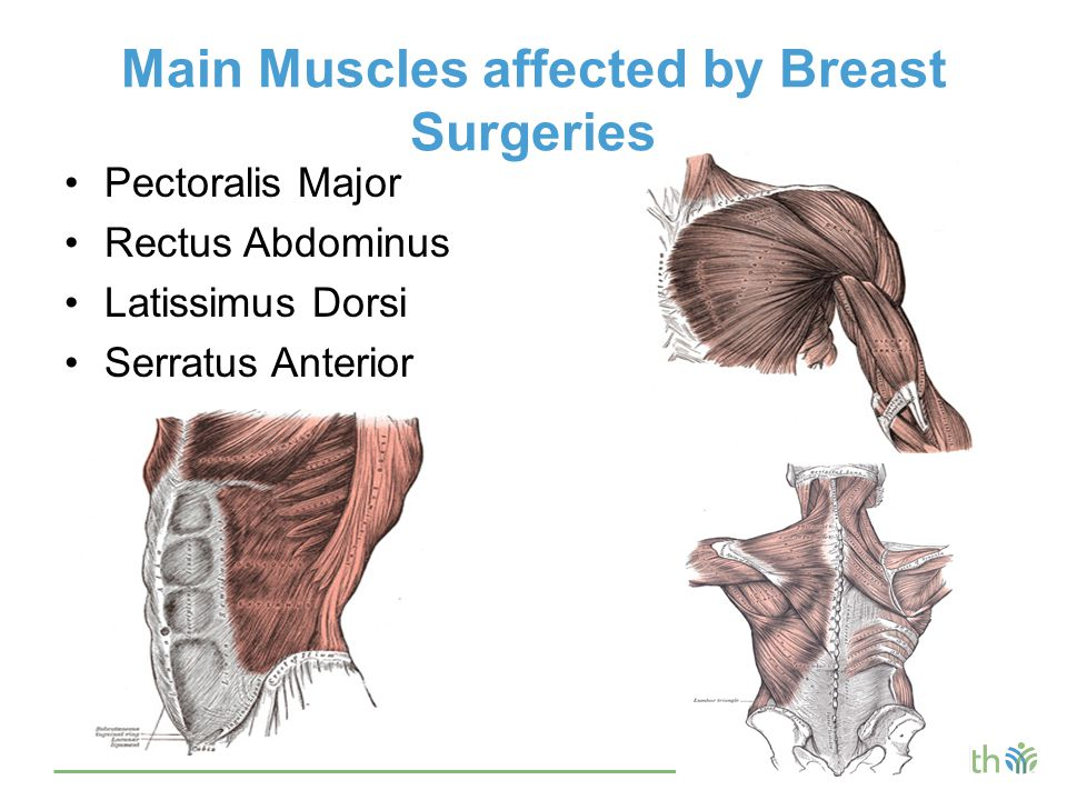 Main Muscles affected by Breast Surgeries Pectoralis Major Rectus Abdominus Latissimus Dorsi Serratus Anterior
