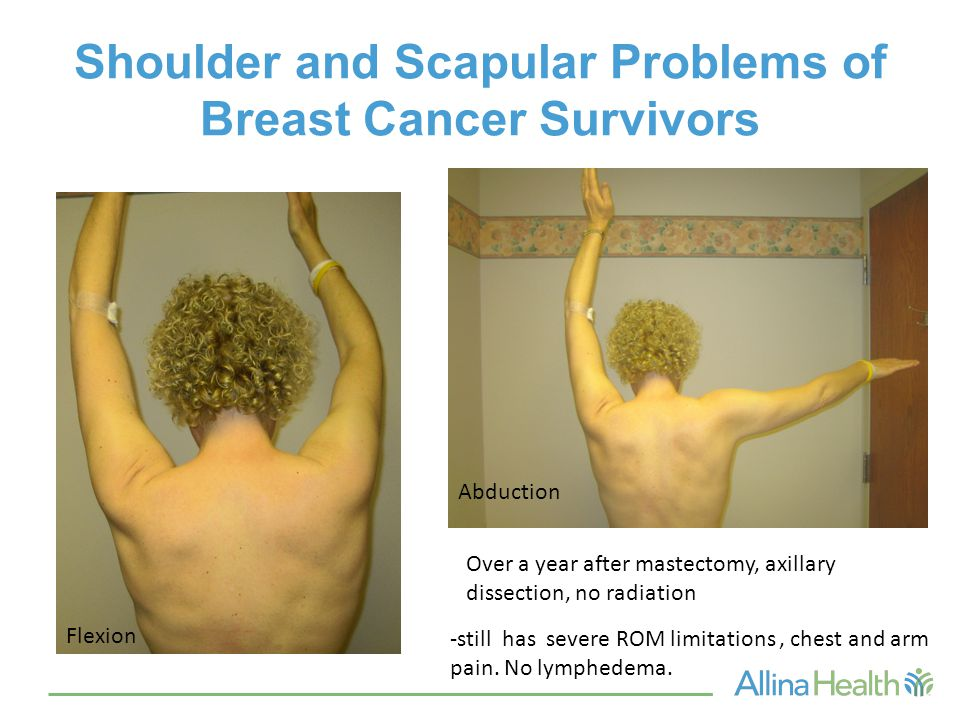 Shoulder and Scapular Problems of Breast Cancer Survivors Flexion Abduction Over a year after mastectomy, axillary dissection, no radiation -still has severe ROM limitations, chest and arm pain.