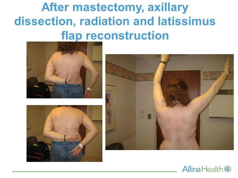 After mastectomy, axillary dissection, radiation and latissimus flap reconstruction